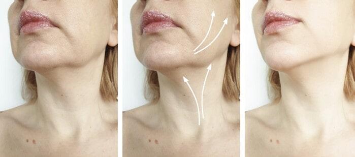 Cómo combatir la flacidez facial